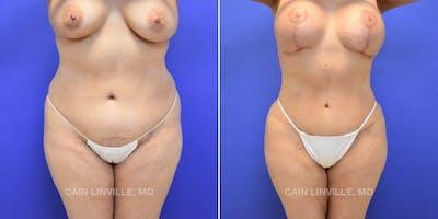 Liposuction Abdominoplasty Gallery - Patient 4819999 - Image 1