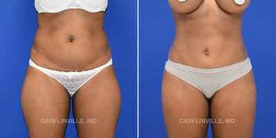Mini Abdominoplasty Gallery - Patient 4820024 - Image 1