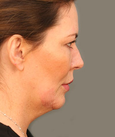 Chin Augmentation Gallery - Patient 4820100 - Image 1