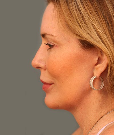 Chin Augmentation Gallery - Patient 4820100 - Image 2