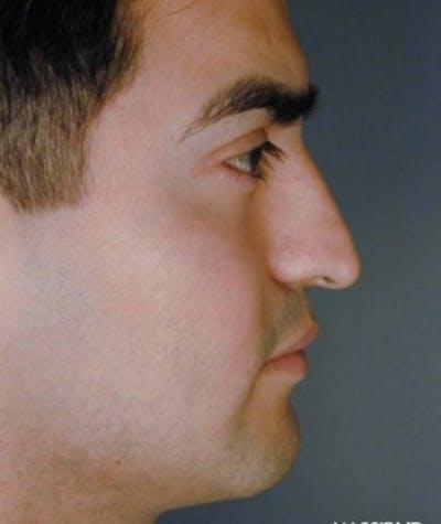 Ethnic Rhinoplasty Gallery - Patient 4820107 - Image 1