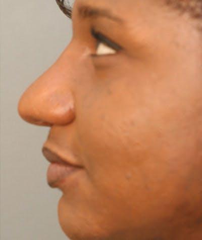 Ethnic Rhinoplasty Gallery - Patient 4820108 - Image 2
