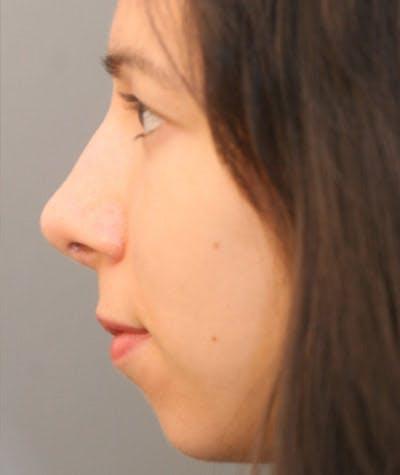 Ethnic Rhinoplasty Gallery - Patient 4820132 - Image 2