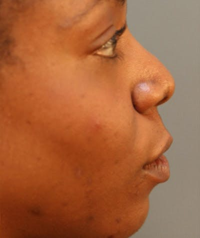 Ethnic Rhinoplasty Gallery - Patient 4820176 - Image 1