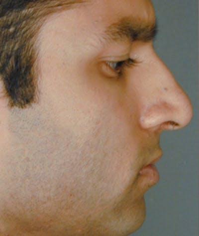 Ethnic Rhinoplasty Gallery - Patient 4820179 - Image 1