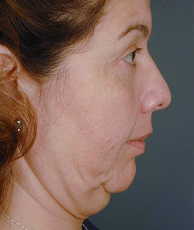 Facelift Gallery - Patient 4820193 - Image 1