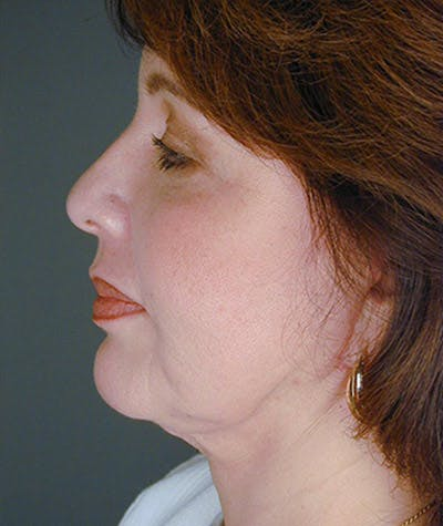 Facelift Gallery - Patient 4820193 - Image 2