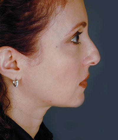 Facelift Gallery - Patient 4820198 - Image 1