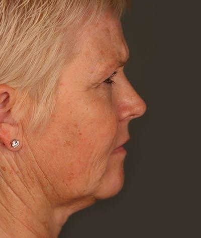 Facelift Gallery - Patient 4820211 - Image 1