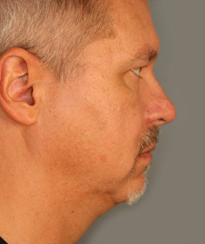 Facelift Gallery - Patient 4820222 - Image 1