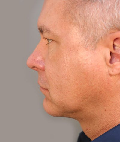 Facelift Gallery - Patient 4820222 - Image 2