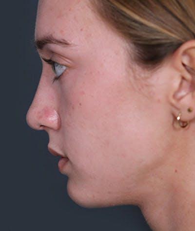 Rhinoplasty  Gallery - Patient 4820231 - Image 2