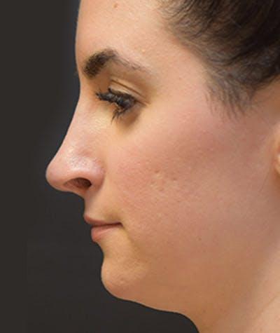 Rhinoplasty  Gallery - Patient 4820243 - Image 2