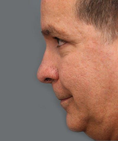Rhinoplasty  Gallery - Patient 4820246 - Image 2