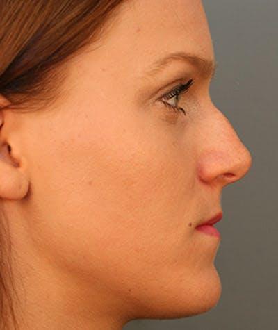 Rhinoplasty  Gallery - Patient 4820253 - Image 1