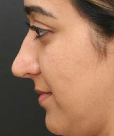 Rhinoplasty  Gallery - Patient 4820260 - Image 2