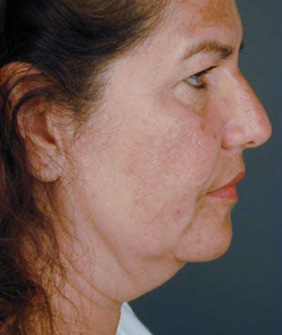 Rhinoplasty  Gallery - Patient 4820264 - Image 1
