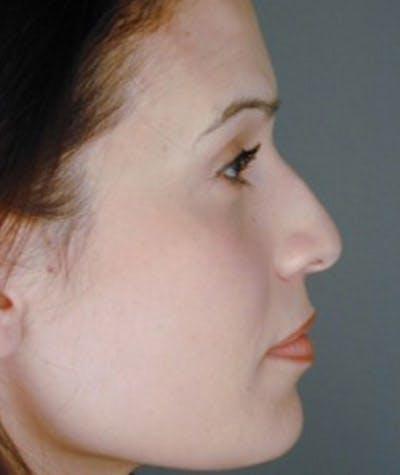 Rhinoplasty  Gallery - Patient 4820265 - Image 1