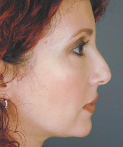 Rhinoplasty  Gallery - Patient 4820270 - Image 1