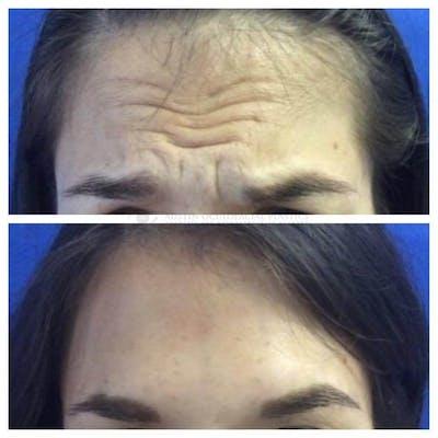 Botox Gallery - Patient 5147932 - Image 1