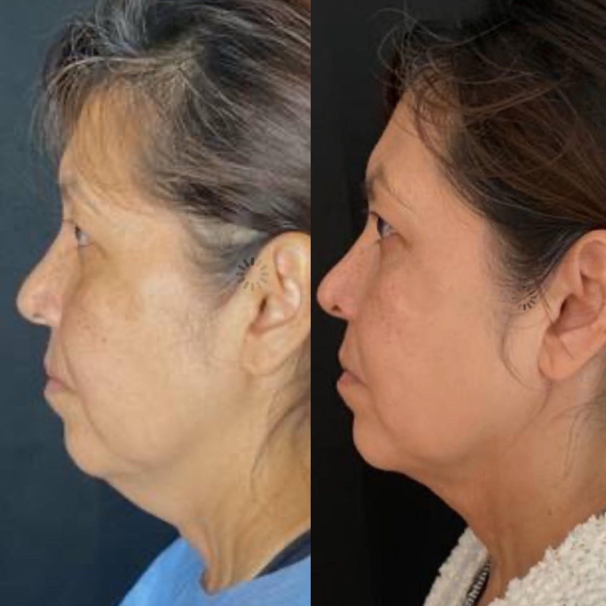 FaceTite™ Gallery - Patient 5203136 - Image 1