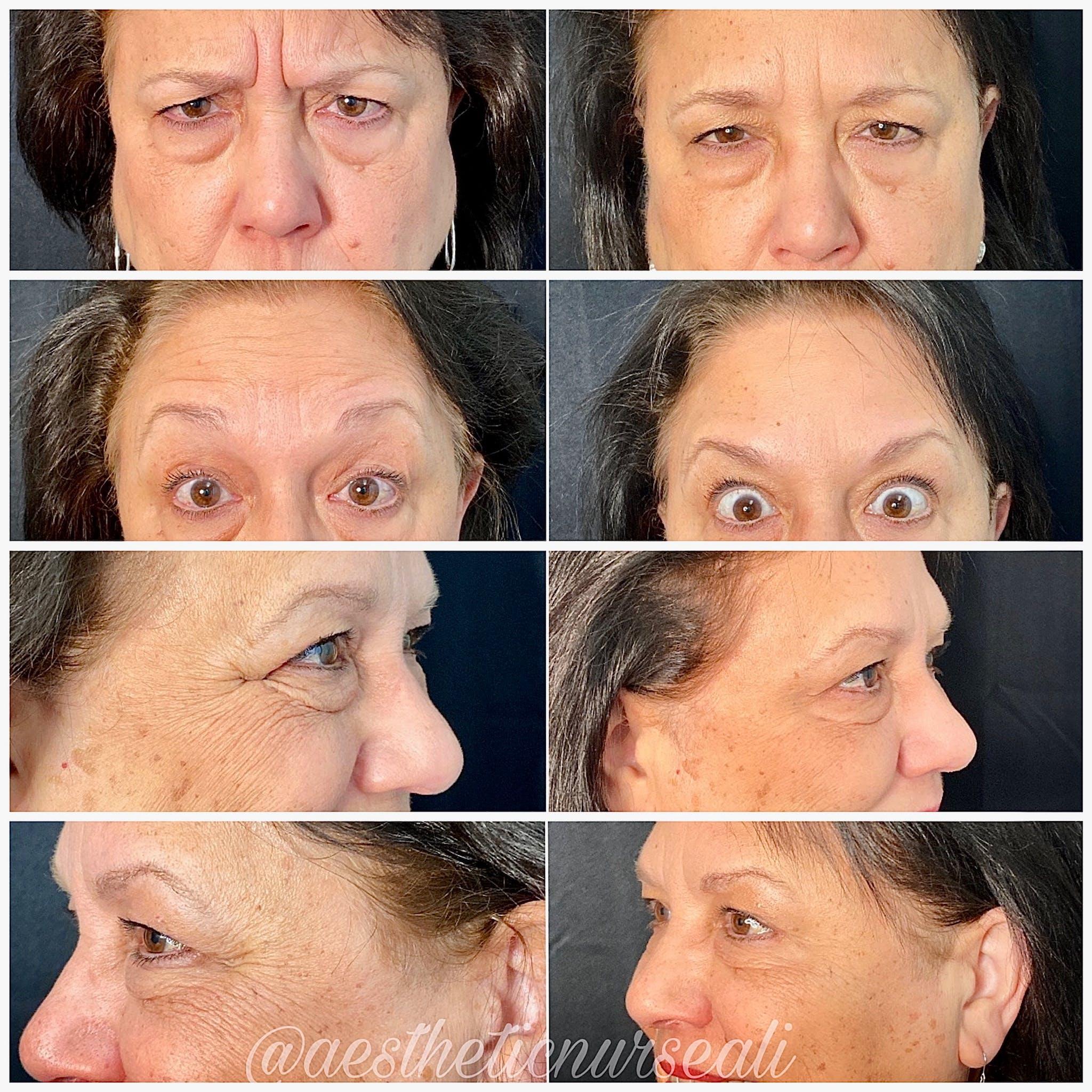 Neurotoxin (BOTOX) Gallery - Patient 5203217 - Image 1