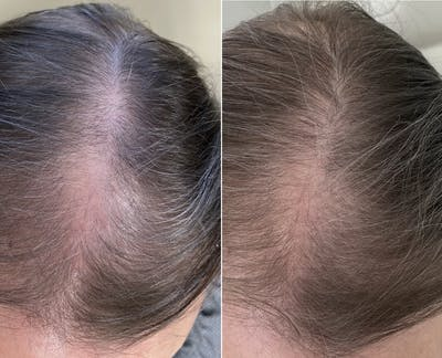 PRP for Hair Gallery - Patient 5228934 - Image 1