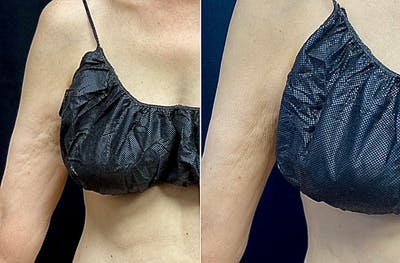Forma Plus Skin Tightening Gallery - Patient 5229391 - Image 1