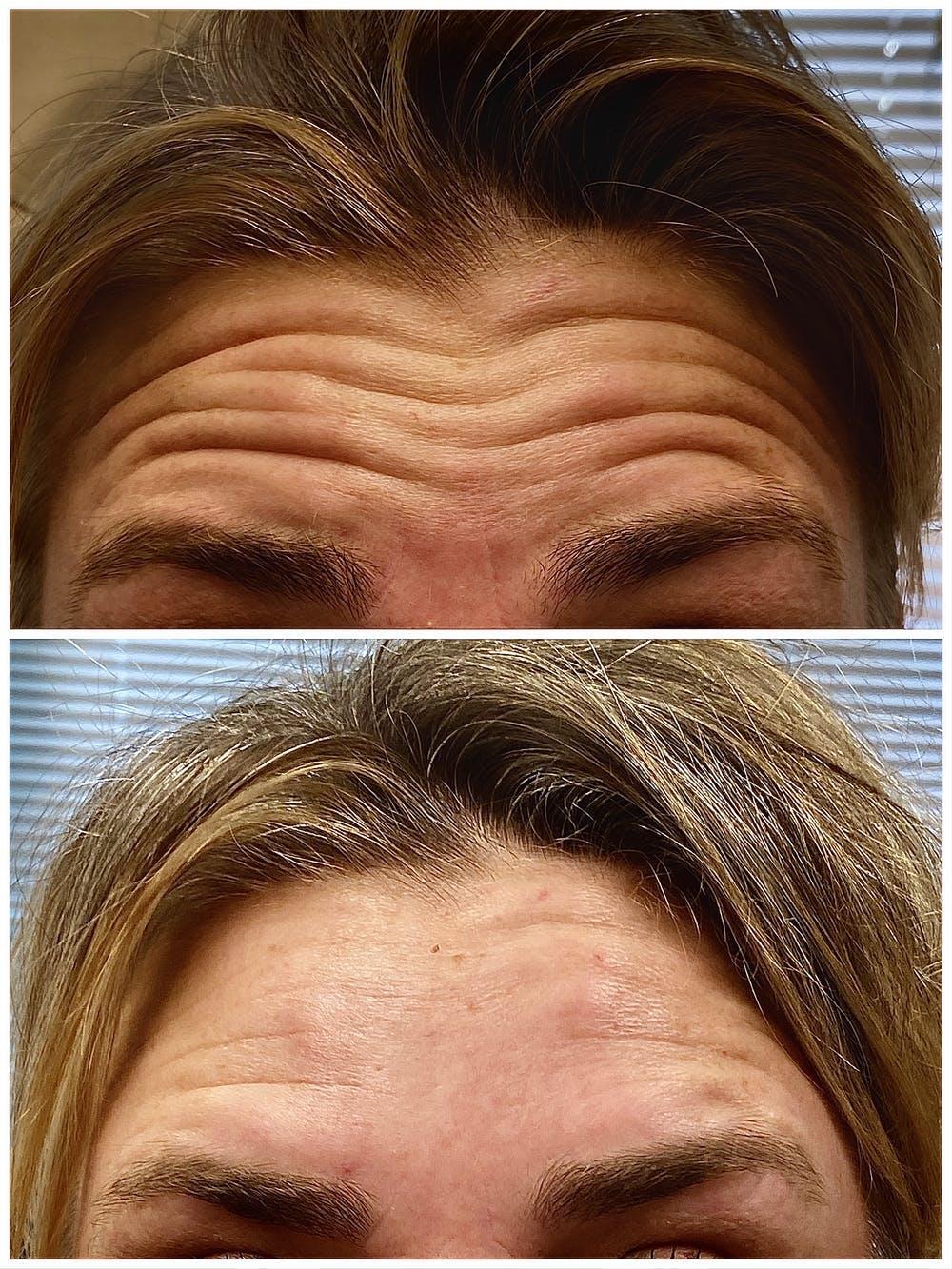 Neurotoxin (BOTOX) Gallery - Patient 5468396 - Image 1