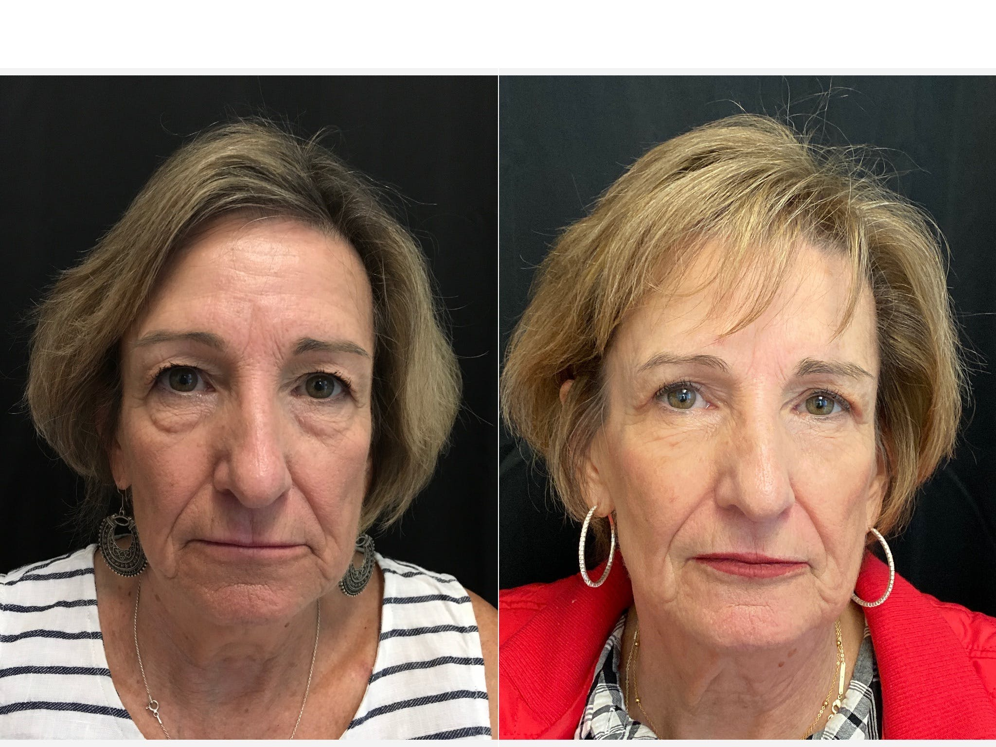 FaceTite™ Gallery - Patient 5645706 - Image 1