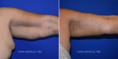 Arm Lift Gallery - Patient 8522137 - Image 1