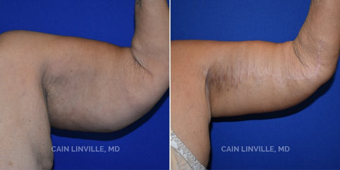 Arm Lift Gallery - Patient 8522143 - Image 1