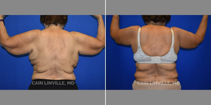 Arm Lift Gallery - Patient 8522147 - Image 1