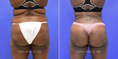 Brazilian Butt Lift Gallery - Patient 8522196 - Image 1