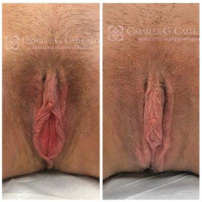 Labiaplasty Gallery - Patient 8522220 - Image 1