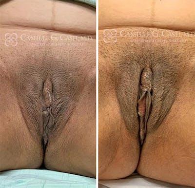 Labiaplasty Gallery - Patient 8522226 - Image 1