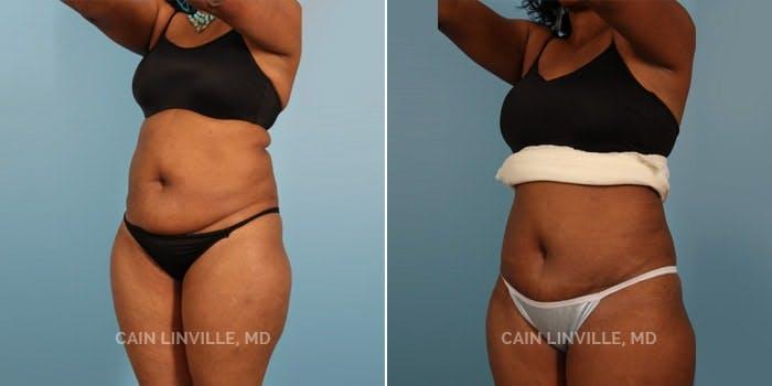Mini Tummy Tuck Gallery - Patient 8522251 - Image 2