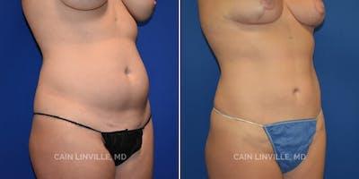Mini Tummy Tuck Gallery - Patient 8522257 - Image 1