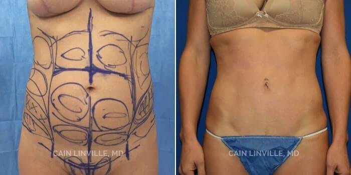 Mini Tummy Tuck Gallery - Patient 8522274 - Image 1