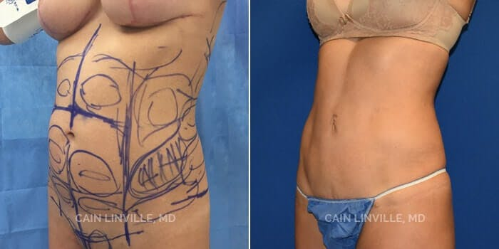 Mini Tummy Tuck Gallery - Patient 8522274 - Image 2
