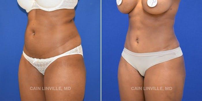 Mini Tummy Tuck Gallery - Patient 8522289 - Image 2