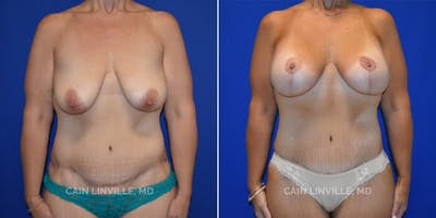 Mommy Makeover Gallery - Patient 8522343 - Image 1