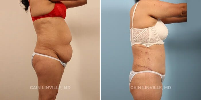 Tummy Tuck Gallery - Patient 8522356 - Image 1
