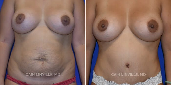 Tummy Tuck Gallery - Patient 8522370 - Image 1