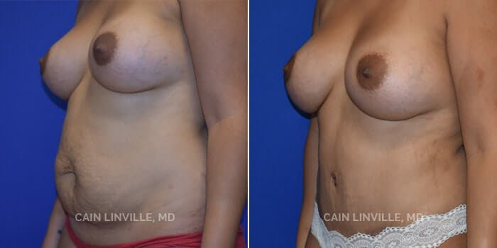 Tummy Tuck Gallery - Patient 8522370 - Image 2