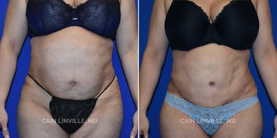 Tummy Tuck Gallery - Patient 8522381 - Image 1