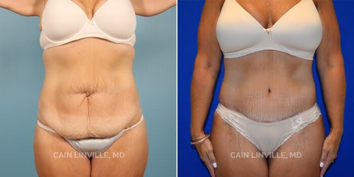 Tummy Tuck Gallery - Patient 8522394 - Image 1