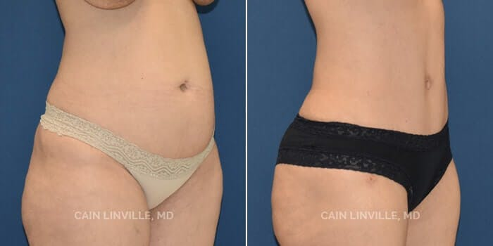 Tummy Tuck Gallery - Patient 8522402 - Image 2