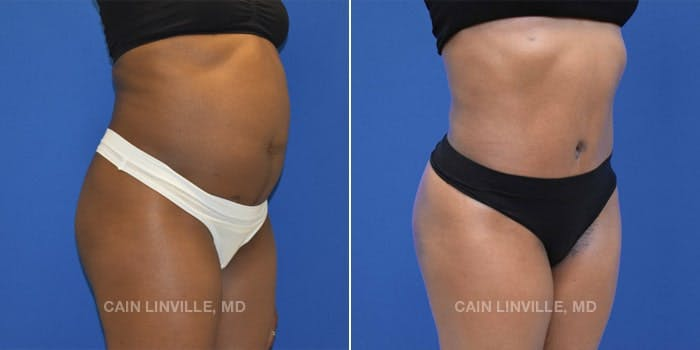 Tummy Tuck Gallery - Patient 8522537 - Image 1