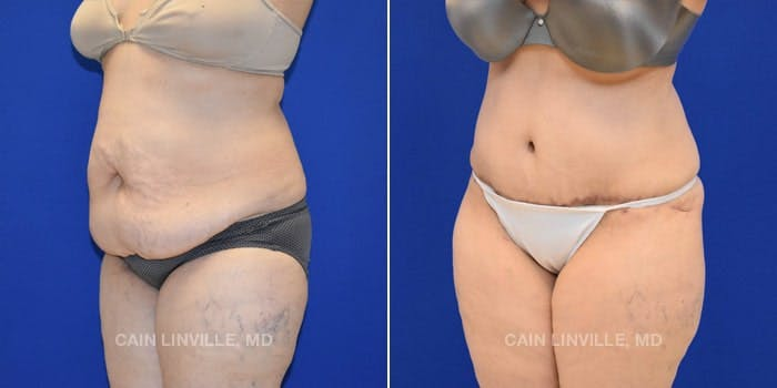 Tummy Tuck Gallery - Patient 8522673 - Image 2